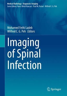 Imaging of Spinal Infection