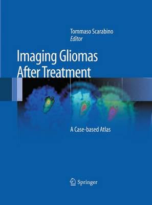 Imaging Gliomas After Treatment