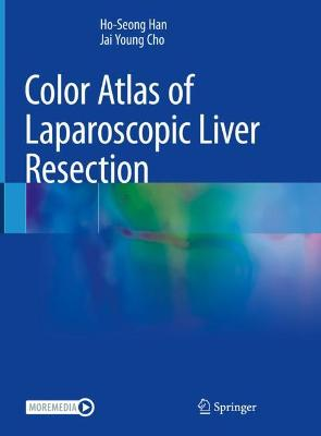 Color Atlas of Laparoscopic Liver Resection