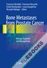 Bone Metastases from Prostate Cancer